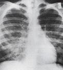 주폐포자층 폐렴