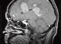 중추신경계약성림프종